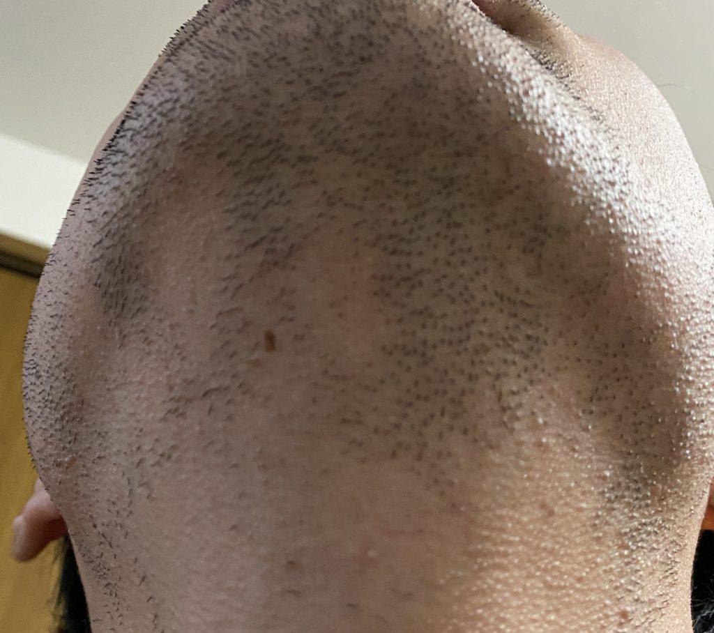 ゴリラクリニック 体験 脱毛